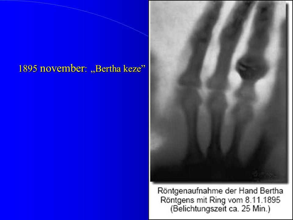 "1895 november : ""Bertha keze"""