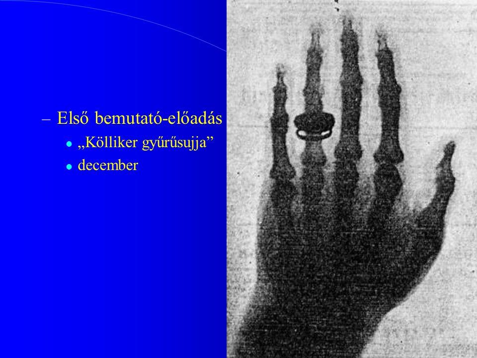 """– Első bemutató-előadás """"Kölliker gyűrűsujja"""" december"""