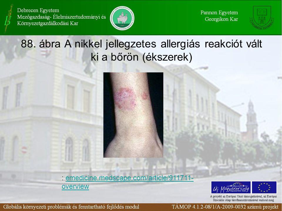 88. ábra A nikkel jellegzetes allergiás reakciót vált ki a bőrön (ékszerek) : emedicine.medscape.com/article/911711- overviewemedicine.medscape.com/ar