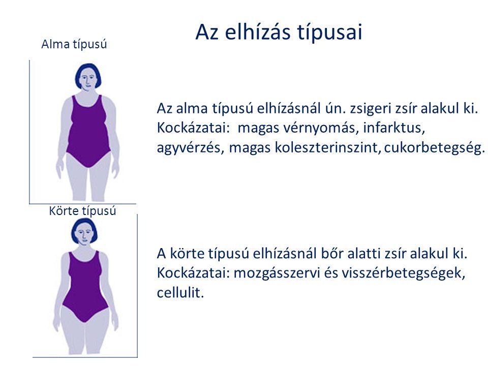Az elhízás típusai Alma típusú Körte típusú Az alma típusú elhízásnál ún. zsigeri zsír alakul ki. Kockázatai: magas vérnyomás, infarktus, agyvérzés, m