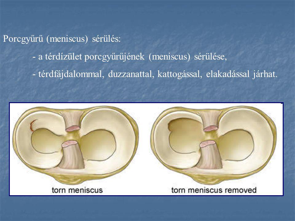 Porcgyűrű (meniscus) sérülés: - a térdízület porcgyűrűjének (meniscus) sérülése, - térdfájdalommal, duzzanattal, kattogással, elakadással járhat.