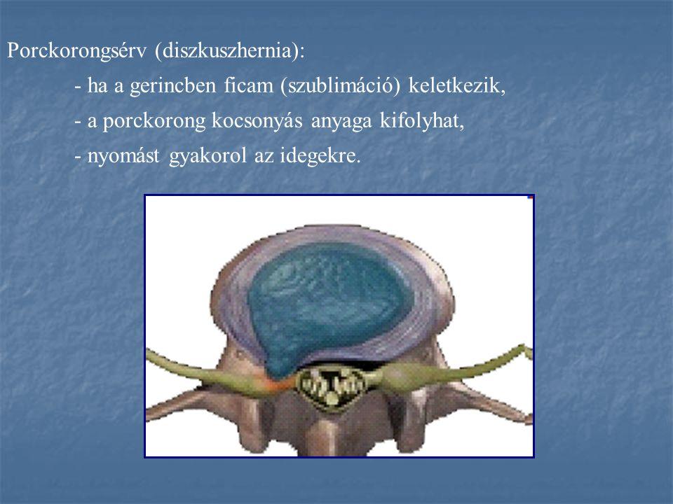Porckorongsérv (diszkuszhernia): - ha a gerincben ficam (szublimáció) keletkezik, - a porckorong kocsonyás anyaga kifolyhat, - nyomást gyakorol az ide