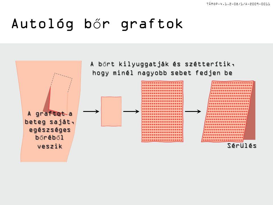TÁMOP-4.1.2-08/1/A-2009-0011 Autológ bőr graftok A bőrt kilyuggatják és szétterítik, hogy minél nagyobb sebet fedjen be A graftot a beteg saját, egész