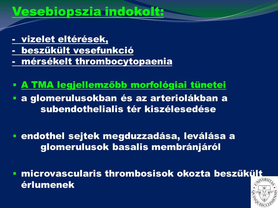 Vesebiopszia indokolt: - vizelet eltérések, - beszűkült vesefunkció - mérsékelt thrombocytopaenia  A TMA legjellemzőbb morfológiai tünetei  a glomer