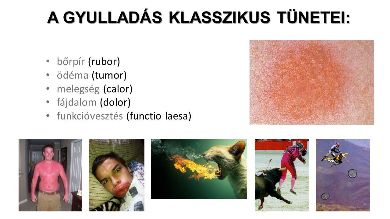bőrpír (rubor) ödéma (tumor) melegség (calor) fájdalom (dolor) funkcióvesztés (functio laesa) A GYULLADÁS KLASSZIKUS TÜNETEI: