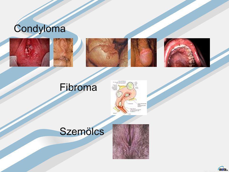 Condyloma Fibroma Szemölcs