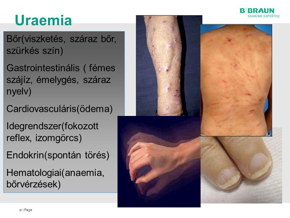 sl | Page Uraemia Bőr(viszketés, száraz bőr, szürkés szín) Gastrointestinális ( fémes szájíz, émelygés, száraz nyelv) Cardiovasculáris(ödema) Idegrend
