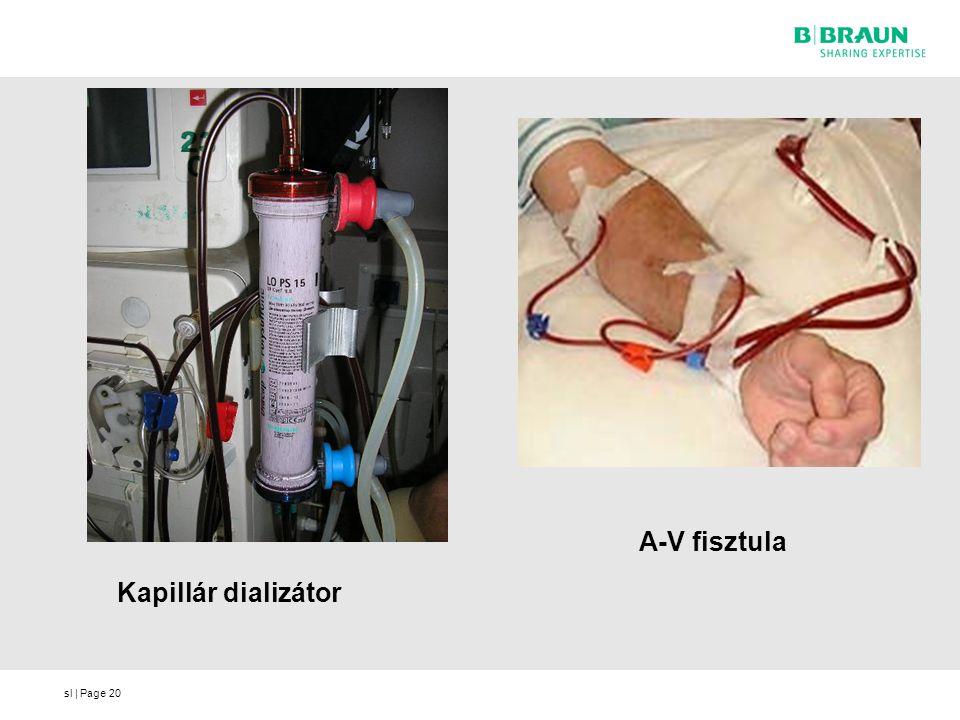 sl | Page Kapillár dializátor 20 A-V fisztula