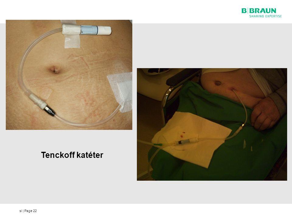 sl | Page22 Tenckoff katéter