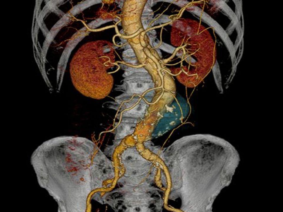 A vesék a test szűrőrendszerei.