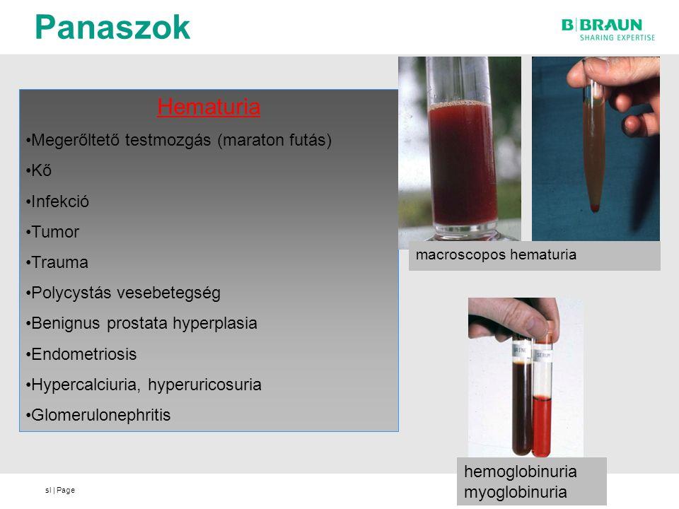 sl | Page Panaszok Hematuria Megerőltető testmozgás (maraton futás) Kő Infekció Tumor Trauma Polycystás vesebetegség Benignus prostata hyperplasia End