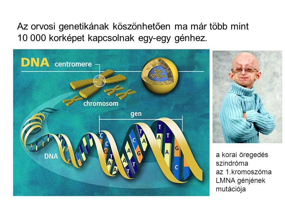 Az orvosi genetikának köszönhetően ma már több mint 10 000 korképet kapcsolnak egy-egy génhez. a korai öregedés szindróma az 1.kromoszóma LMNA génjéne