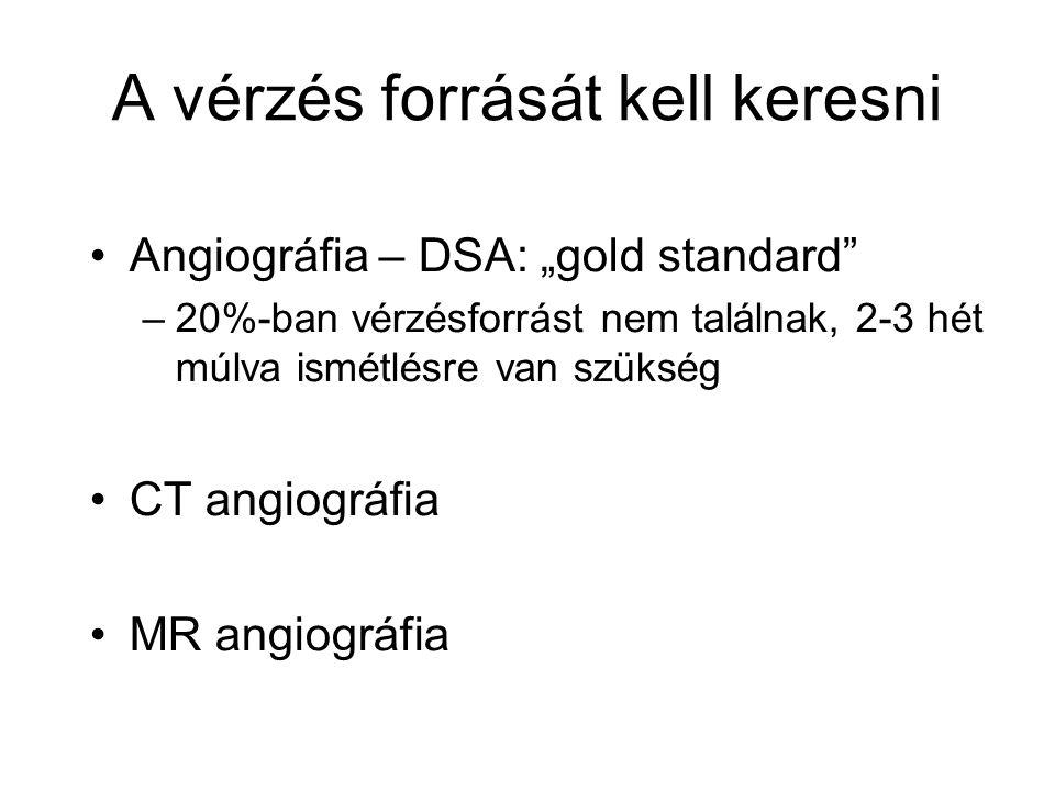 """A vérzés forrását kell keresni Angiográfia – DSA: """"gold standard"""" –20%-ban vérzésforrást nem találnak, 2-3 hét múlva ismétlésre van szükség CT angiogr"""