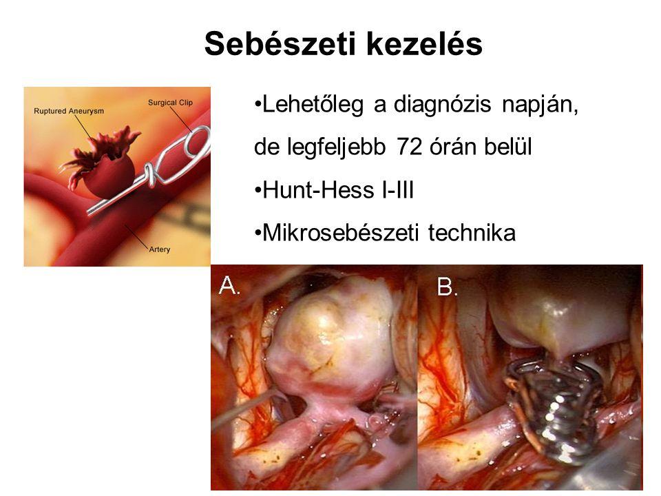 Sebészeti kezelés Lehetőleg a diagnózis napján, de legfeljebb 72 órán belül Hunt-Hess I-III Mikrosebészeti technika