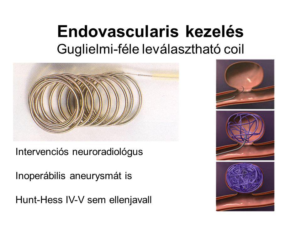 Endovascularis kezelés Guglielmi-féle leválasztható coil Intervenciós neuroradiológus Inoperábilis aneurysmát is Hunt-Hess IV-V sem ellenjavall