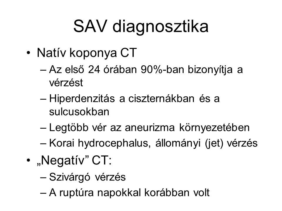 SAV diagnosztika Natív koponya CT –Az első 24 órában 90%-ban bizonyítja a vérzést –Hiperdenzitás a ciszternákban és a sulcusokban –Legtöbb vér az aneu