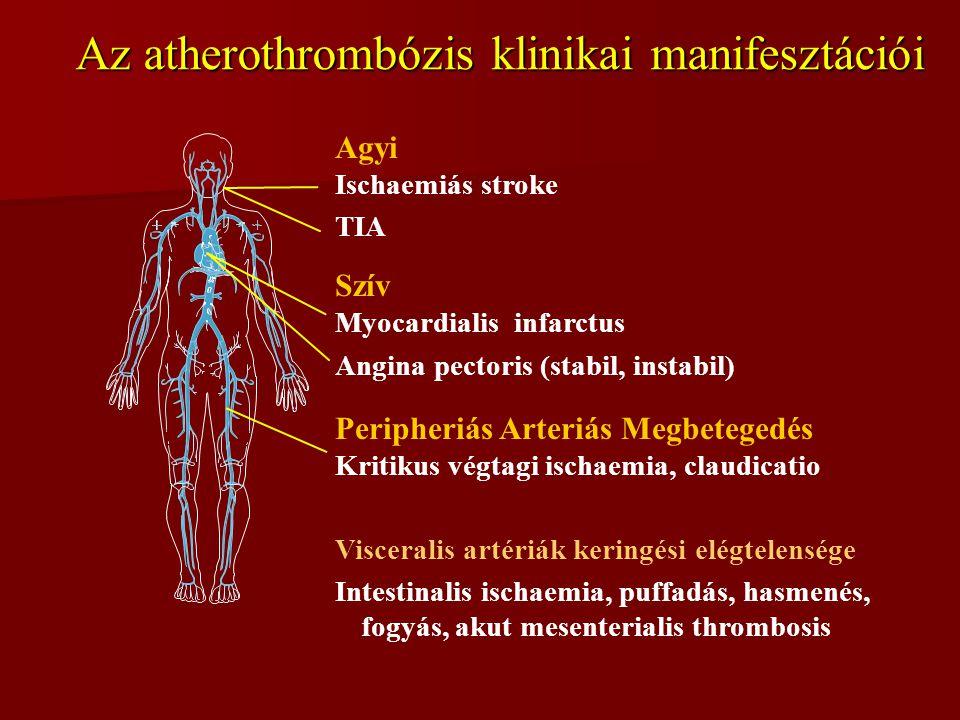 Agyi Ischaemiás stroke TIA Szív Myocardialis infarctus Angina pectoris (stabil, instabil) Peripheriás Arteriás Megbetegedés Kritikus végtagi ischaemia