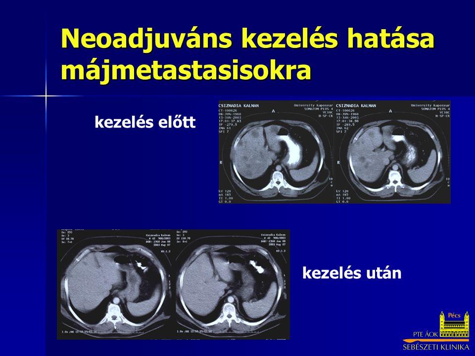 Neoadjuváns kezelés hatása májmetastasisokra kezelés előtt kezelés után