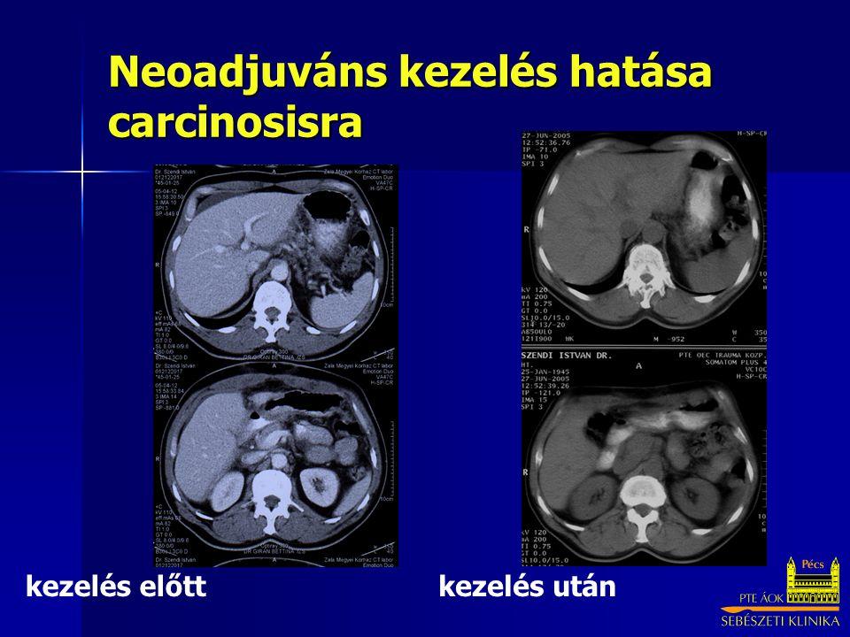 Neoadjuváns kezelés hatása carcinosisra kezelés előttkezelés után