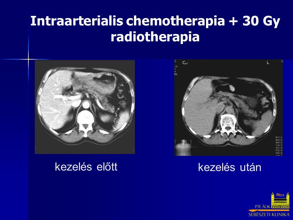 Intraarterialis chemotherapia + 30 Gy radiotherapia kezelés előtt kezelés után