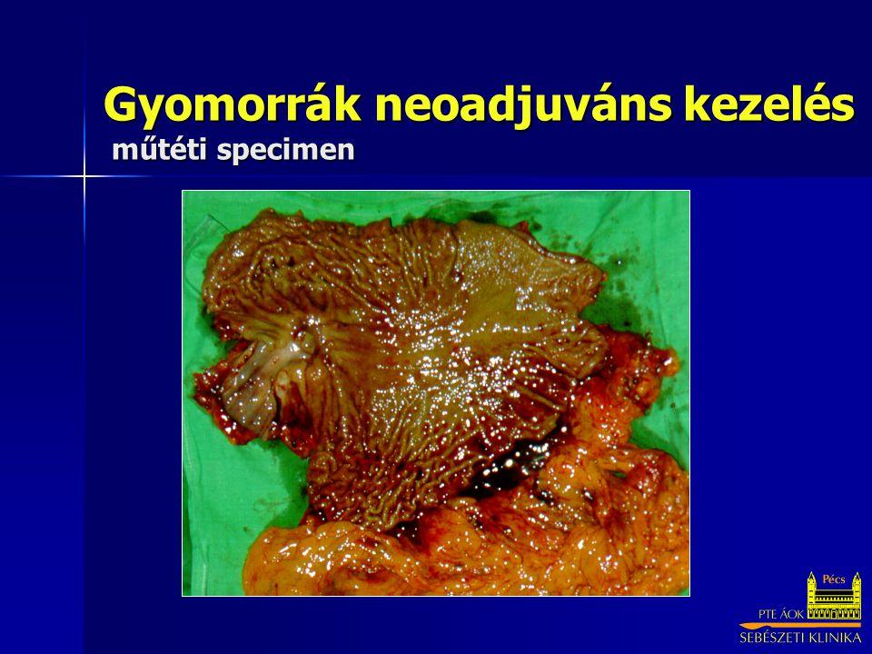 Gyomorrák neoadjuváns kezelés műtéti specimen