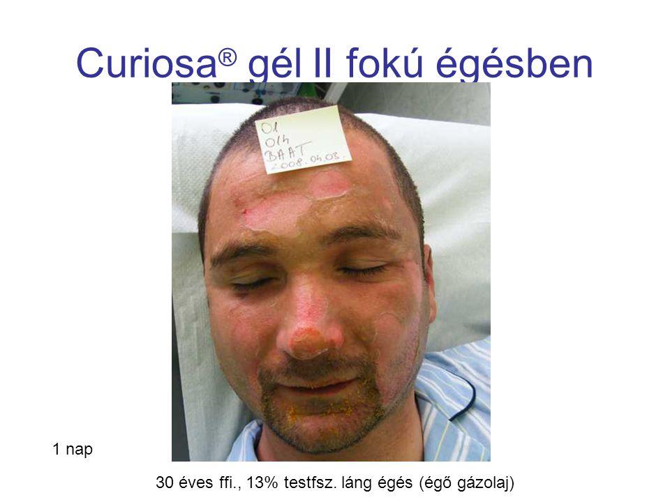MSKT, Budapest, 2009. okt. 29-30. Curiosa ® gél II fokú égésben 1 nap 30 éves ffi., 13% testfsz. láng égés (égő gázolaj)