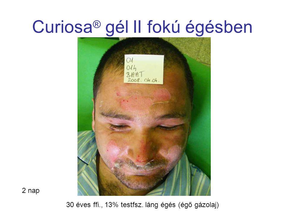 MSKT, Budapest, 2009. okt. 29-30. Curiosa ® gél II fokú égésben 2 nap 30 éves ffi., 13% testfsz. láng égés (égő gázolaj)
