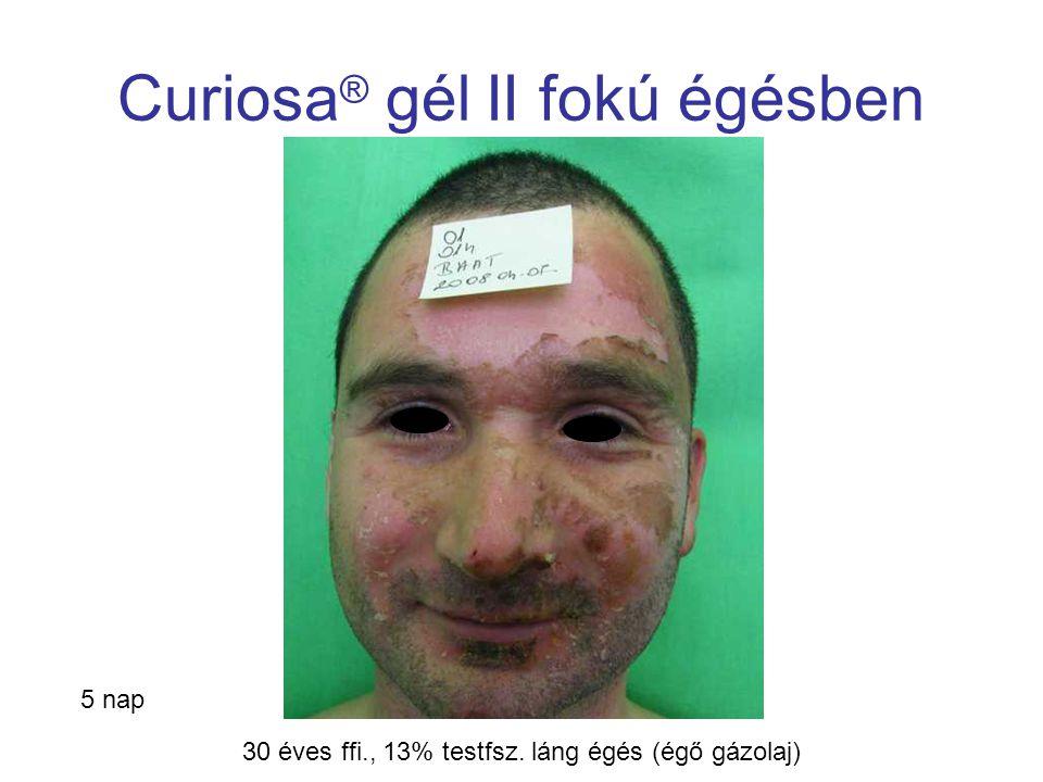 MSKT, Budapest, 2009. okt. 29-30. Curiosa ® gél II fokú égésben 5 nap 30 éves ffi., 13% testfsz. láng égés (égő gázolaj)