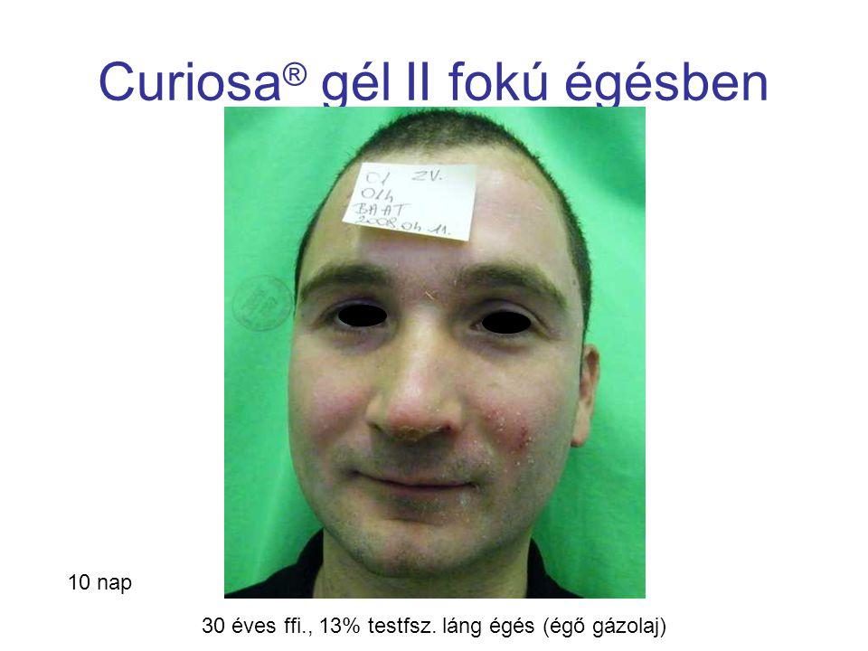 MSKT, Budapest, 2009. okt. 29-30. Curiosa ® gél II fokú égésben 10 nap 30 éves ffi., 13% testfsz. láng égés (égő gázolaj)