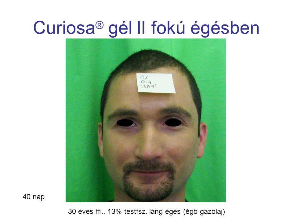 MSKT, Budapest, 2009. okt. 29-30. Curiosa ® gél II fokú égésben 40 nap 30 éves ffi., 13% testfsz. láng égés (égő gázolaj)