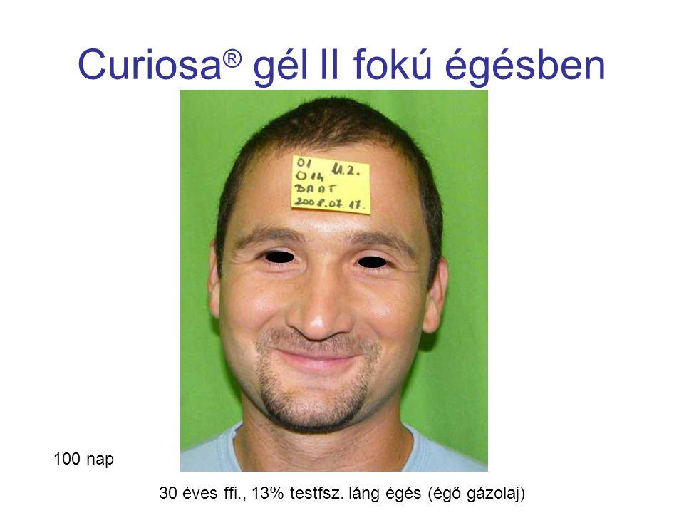 MSKT, Budapest, 2009. okt. 29-30. Curiosa ® gél II fokú égésben 100 nap 30 éves ffi., 13% testfsz. láng égés (égő gázolaj)