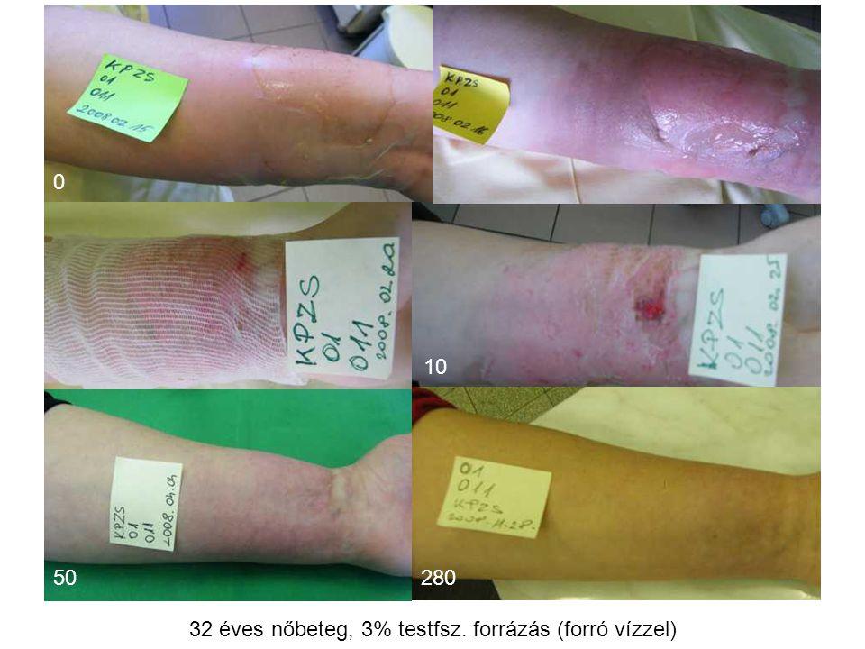 MSKT, Budapest, 2009. okt. 29-30. 28050 0 10 32 éves nőbeteg, 3% testfsz. forrázás (forró vízzel)