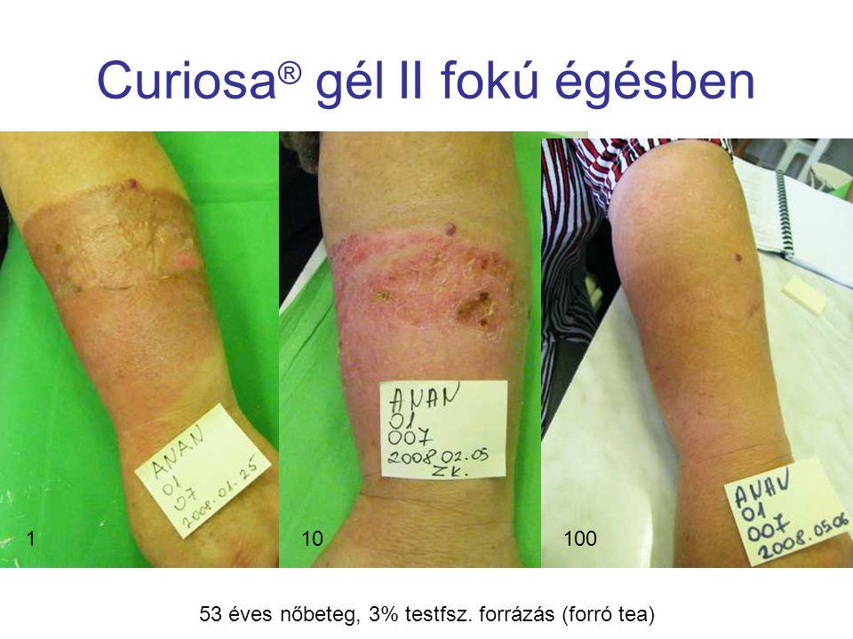 MSKT, Budapest, 2009. okt. 29-30. Curiosa ® gél II fokú égésben 110100 53 éves nőbeteg, 3% testfsz. forrázás (forró tea)
