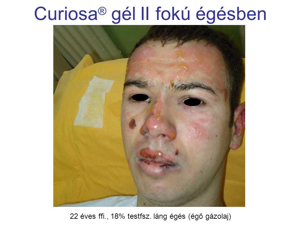 MSKT, Budapest, 2009. okt. 29-30. Curiosa ® gél II fokú égésben 22 éves ffi., 18% testfsz. láng égés (égő gázolaj)