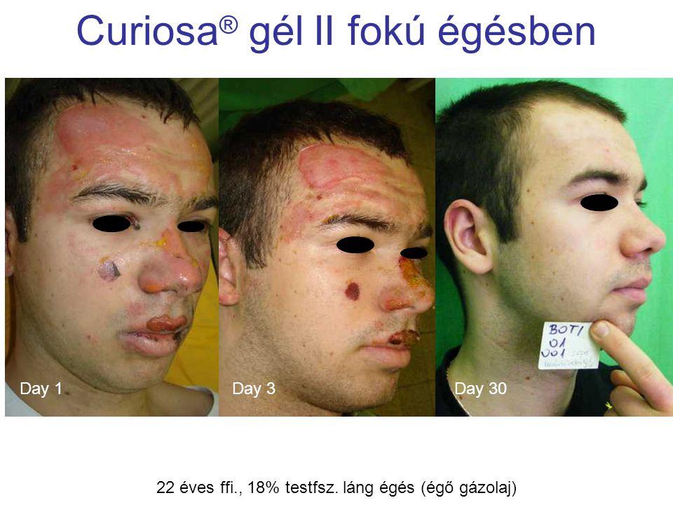 MSKT, Budapest, 2009. okt. 29-30. Curiosa ® gél II fokú égésben Day 3Day 1Day 30 22 éves ffi., 18% testfsz. láng égés (égő gázolaj)