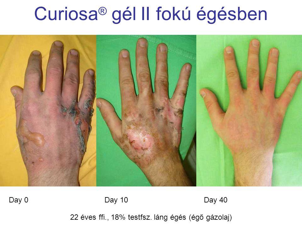 MSKT, Budapest, 2009. okt. 29-30. Curiosa ® gél II fokú égésben Day 0Day 40Day 10 22 éves ffi., 18% testfsz. láng égés (égő gázolaj)