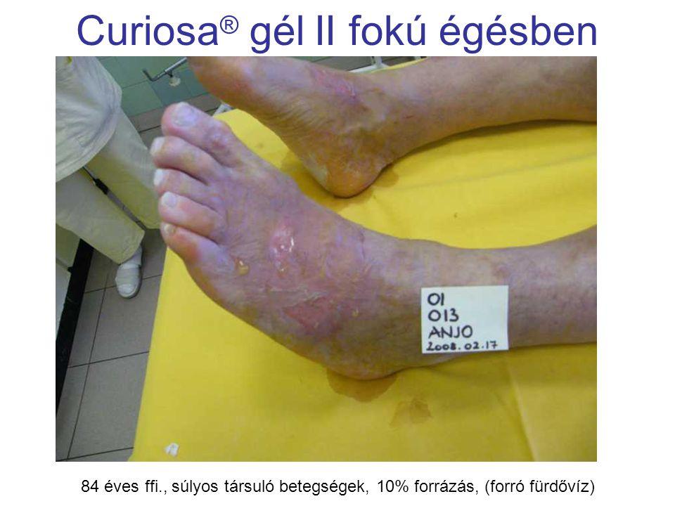 MSKT, Budapest, 2009. okt. 29-30. Curiosa ® gél II fokú égésben 84 éves ffi., súlyos társuló betegségek, 10% forrázás, (forró fürdővíz)