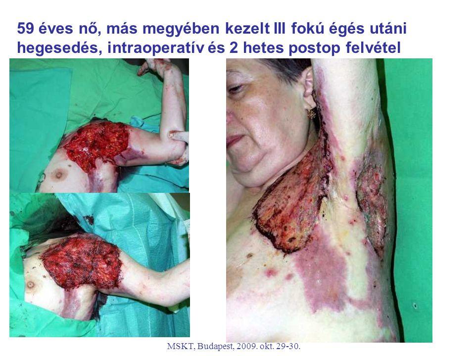 MSKT, Budapest, 2009. okt. 29-30. 59 éves nő, más megyében kezelt III fokú égés utáni hegesedés, intraoperatív és 2 hetes postop felvétel