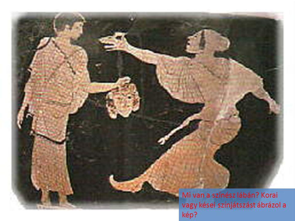 Mi van a színész lábán? Korai vagy kései színjátszást ábrázol a kép?