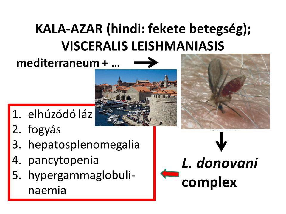KALA-AZAR (hindi: fekete betegség); VISCERALIS LEISHMANIASIS L. donovani complex 1.elhúzódó láz 2.fogyás 3.hepatosplenomegalia 4.pancytopenia 5.hyperg