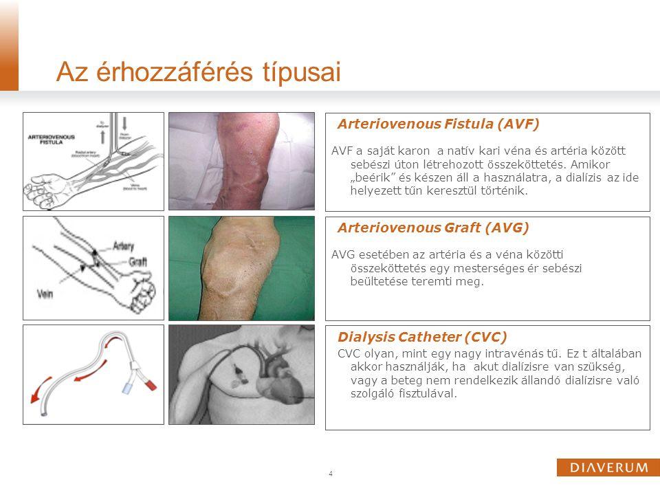 """Arteriovenous Fistula (AVF) AVF a saját karon a natív kari véna és artéria között sebészi úton létrehozott összeköttetés. Amikor """"beérik"""" és készen ál"""