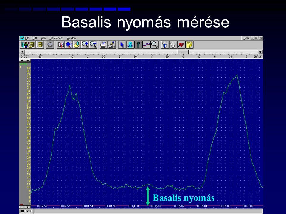 Basalis nyomás Basalis nyomás mérése