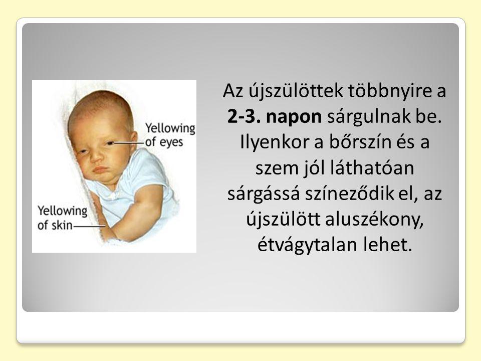 Az újszülöttek többnyire a 2-3.napon sárgulnak be.