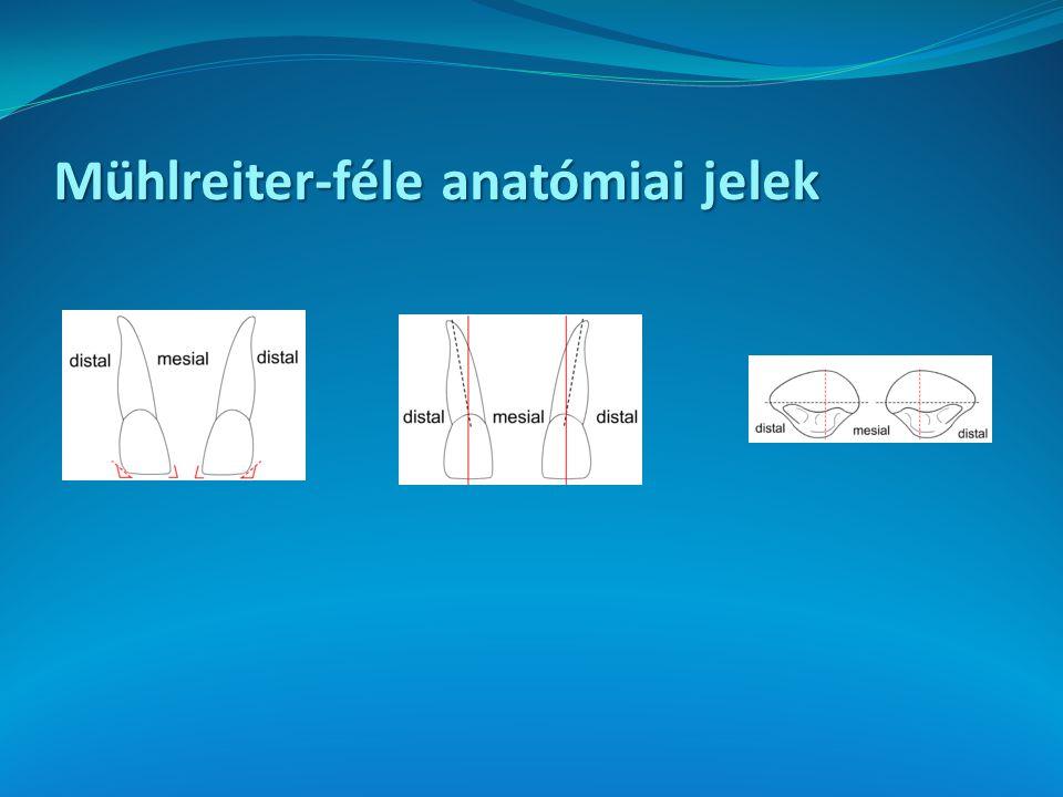 Mühlreiter-féle anatómiai jelek