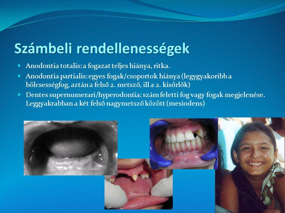 Számbeli rendellenességek Anodontia totalis: a fogazat teljes hiánya, ritka. Anodontia partialis: egyes fogak/csoportok hiánya (legygyakoribb a bölcse