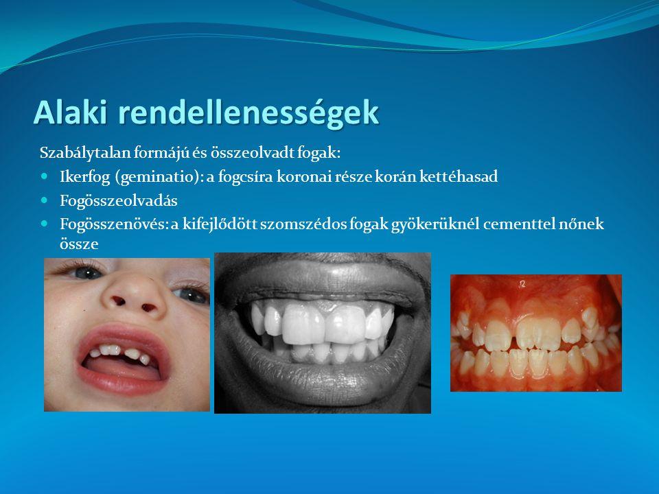 Alaki rendellenességek Szabálytalan formájú és összeolvadt fogak: Ikerfog (geminatio): a fogcsíra koronai része korán kettéhasad Fogösszeolvadás Fogös