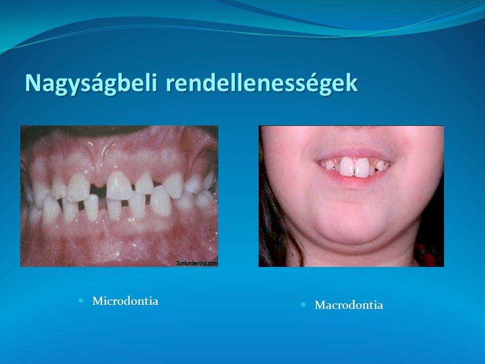 Nagyságbeli rendellenességek Microdontia Macrodontia