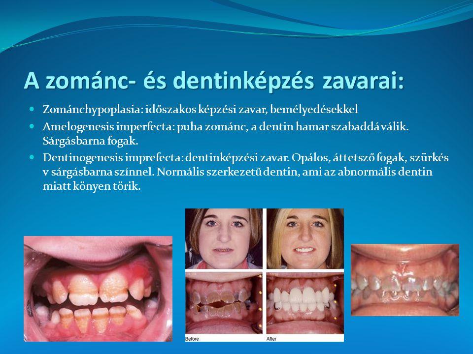 A zománc- és dentinképzés zavarai: Zománchypoplasia: időszakos képzési zavar, bemélyedésekkel Amelogenesis imperfecta: puha zománc, a dentin hamar sza