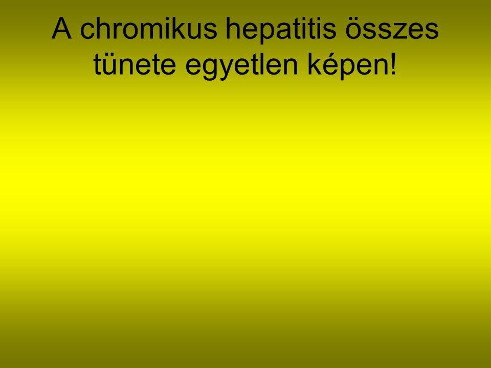A chronikus hepatitis összes tünete egyetlen képen!