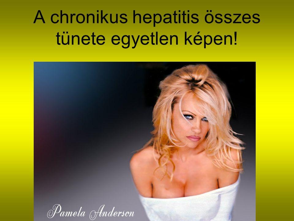 Rezisztencia a gyakorlatban Kezelés Vírusok száma 12.